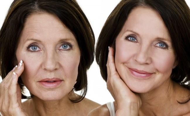 Benefícios do Ácido Hialurônico