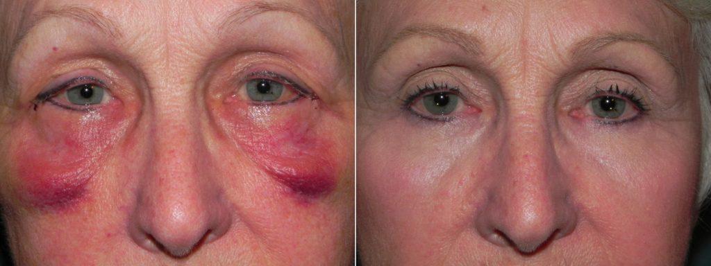 Benefícios da Drenagem Linfática Facial