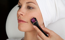 Eliminar cicatrizes de acne