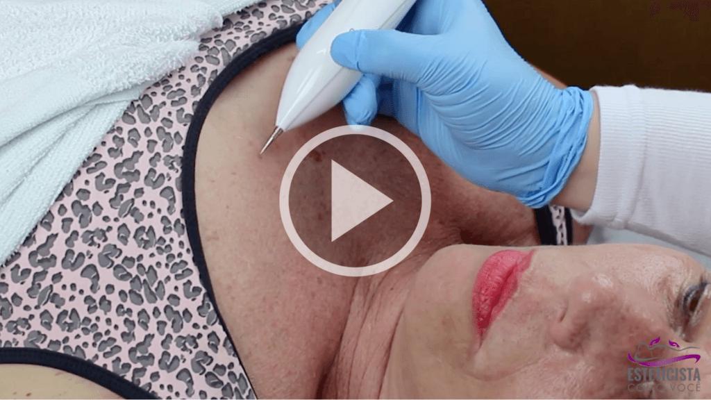 Disidrose - Um problema de pele muito frequente 6