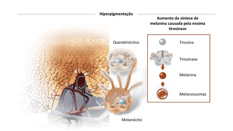 Hiperpigmentação Pós Inflamatória 3