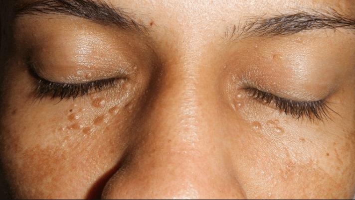 Siringomas - O que são e como tratar 1