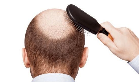 Alopecia Androgênica