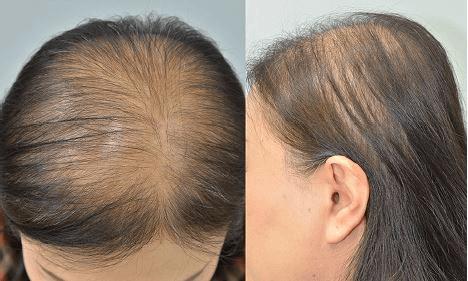Alopecia Feminina